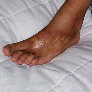 Esclerodermia morfea 1