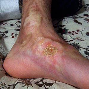 Esclerodermia morfea 2