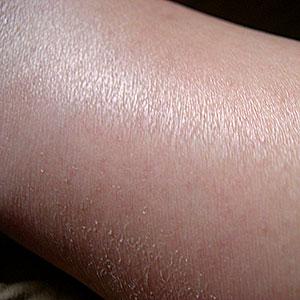 Dorso pierna