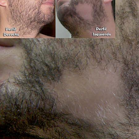 Hueco en la barba