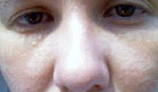 Hipopigmentación postinflamatoria