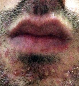 foliculitis-en-la-barba (1)