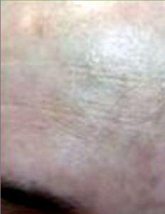 las-cicatrices-hipopigmentadas-nunca-vuelven-broncearse-resto-la-piel