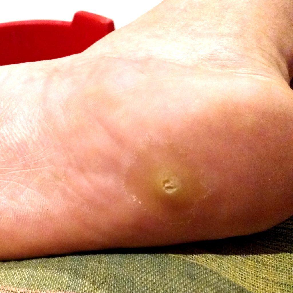 lesion-dolorosa-la-piel-del-talon (2)