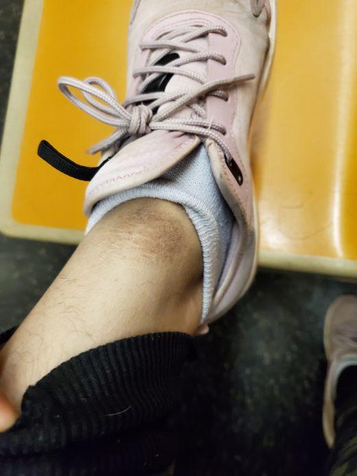 mancha oscura alrededor del tobillo
